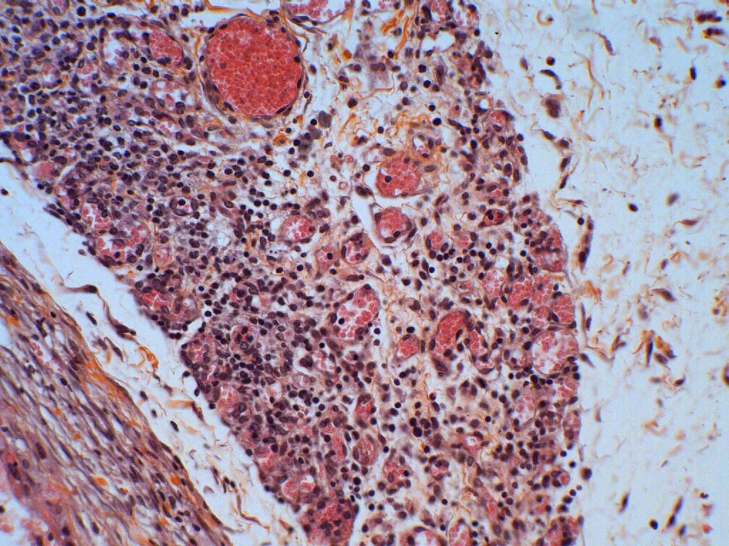 angiogénèse 04 V07-283