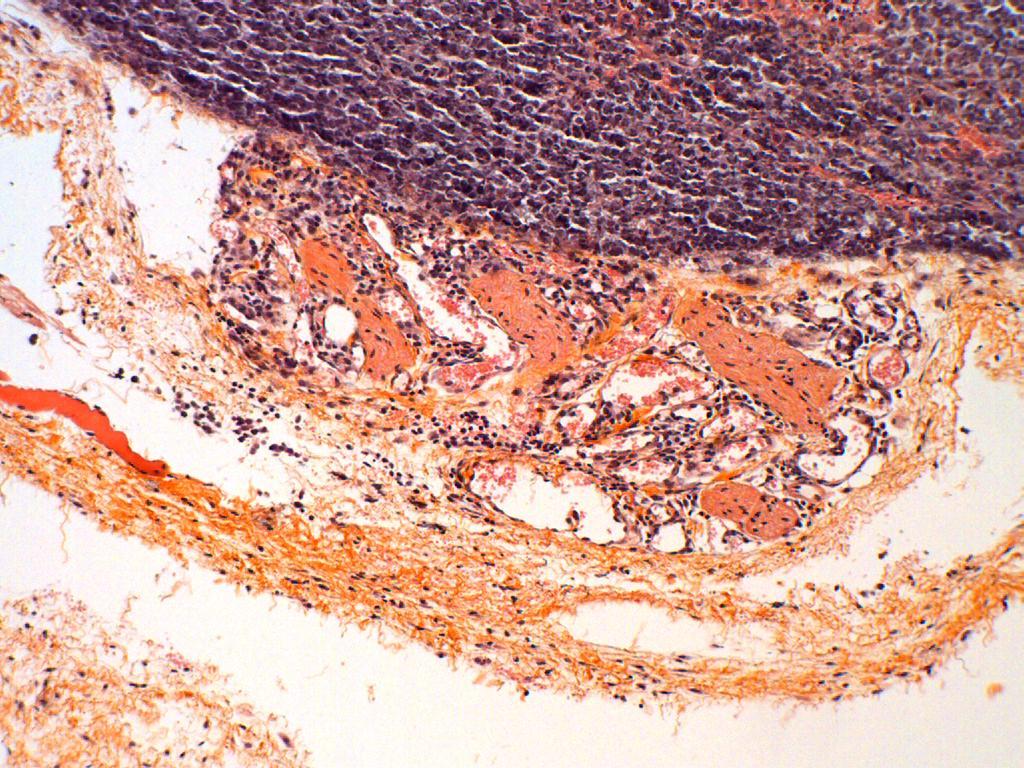 angiogénèse 05 V07-292