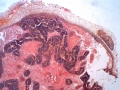 angiogénèse 01 V07-283